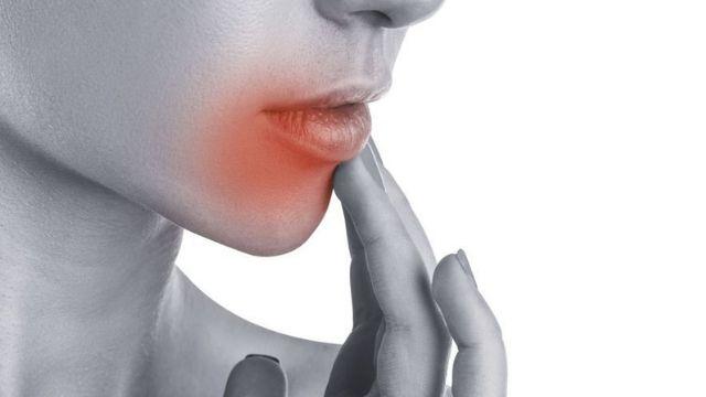 Quel est le meilleur remède naturel herpès ?