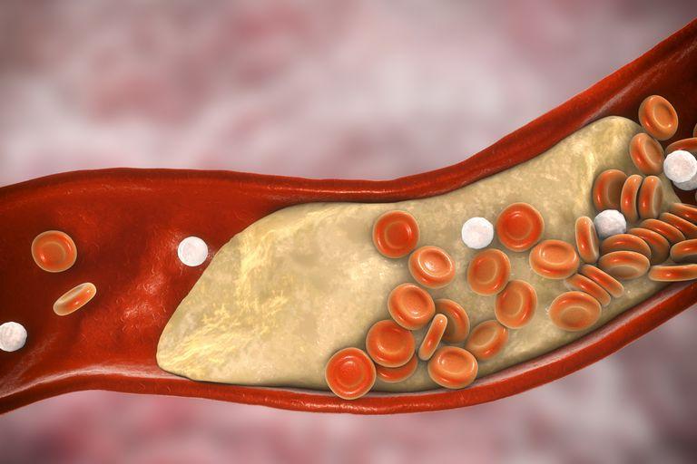 spiruline cholesterol
